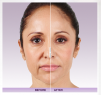 Juvederm Voluma cheek filler