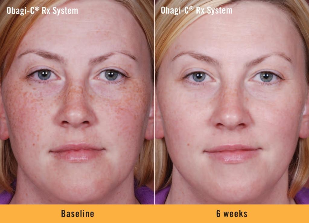 Obagi Skincare Products
